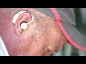 Amplificatore acustico